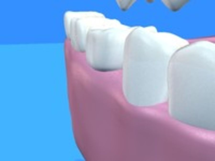 Teeth royalty-free 3d model - Preview no. 3