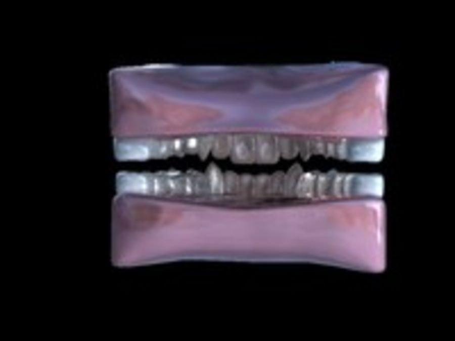 Teeth royalty-free 3d model - Preview no. 11