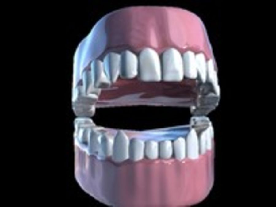 Teeth royalty-free 3d model - Preview no. 9