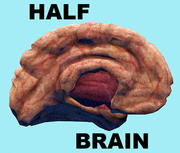 Real HALF Brain 3d model