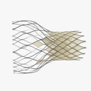 経カテーテル大動脈インプラント 3d model