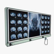 X-ray monitor 3d model