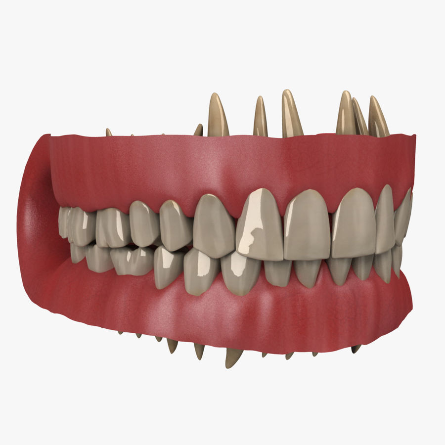 Teeth and Gums royalty-free 3d model - Preview no. 3