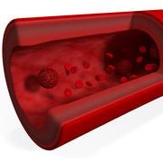 Célula cancerígena 3d model