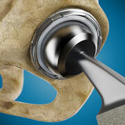 Femoral Prosthesis With Tibia And Pelvis 3d model