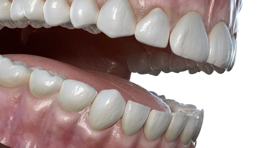 Mouth teeth gum realistic dental royalty-free 3d model - Preview no. 8