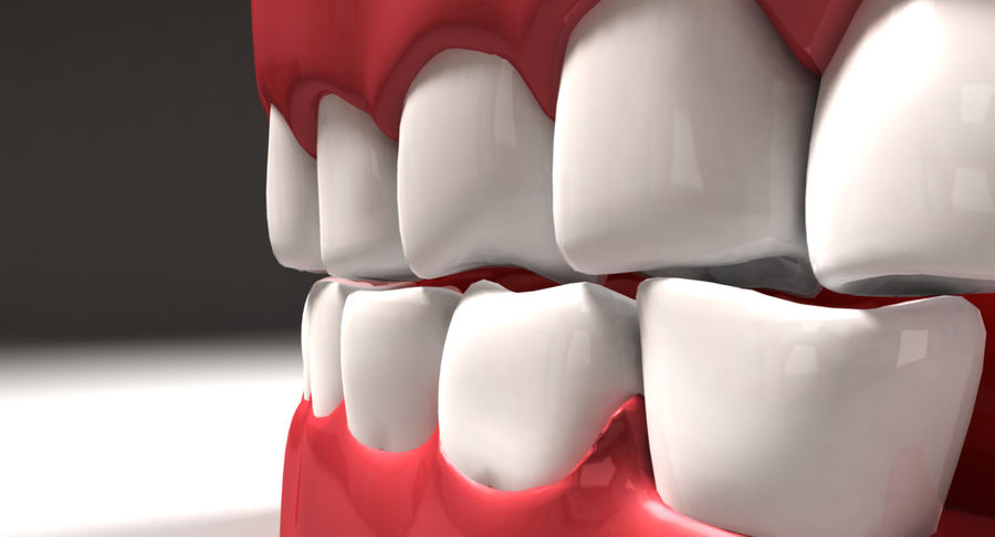 Teeth royalty-free 3d model - Preview no. 7
