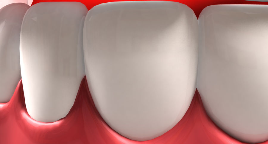Teeth royalty-free 3d model - Preview no. 6
