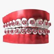 Dentes com Aparelho 3d model