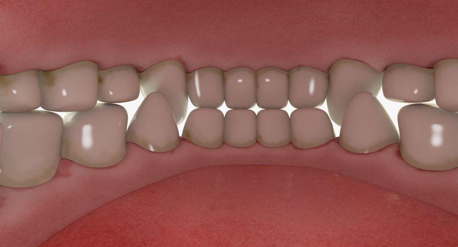 牙齿和牙龈和舌头 royalty-free 3d model - Preview no. 11
