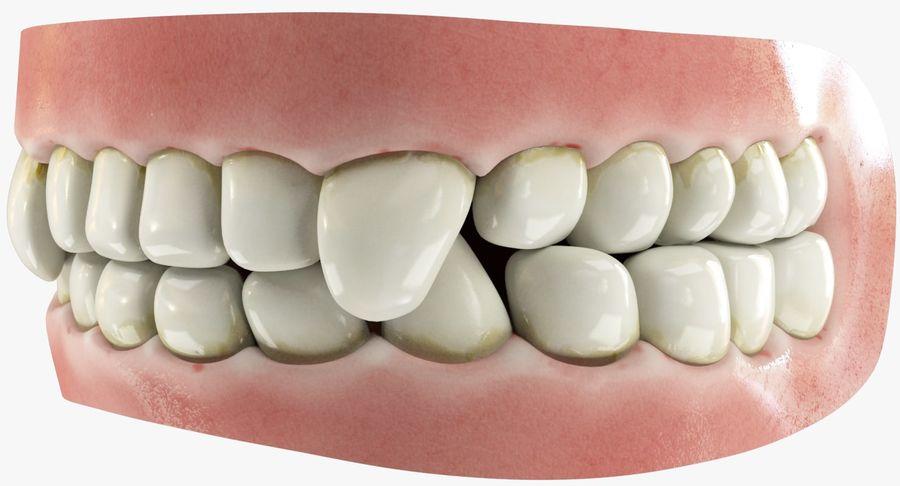 牙齿和牙龈和舌头 royalty-free 3d model - Preview no. 2