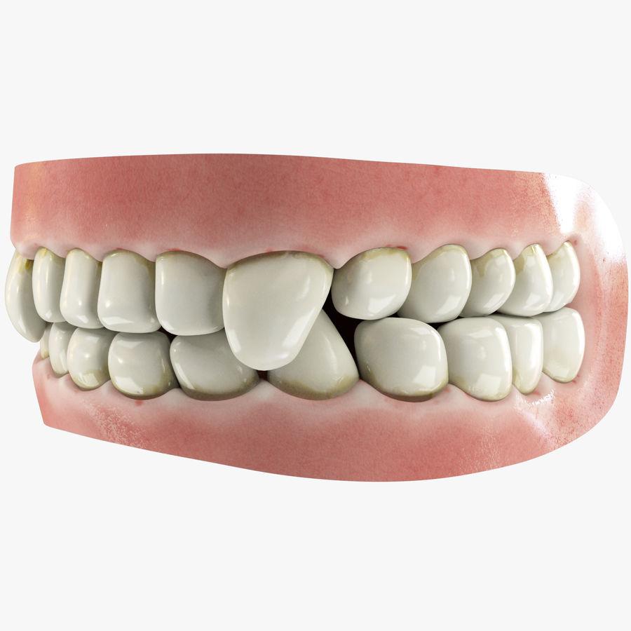 牙齿和牙龈和舌头 royalty-free 3d model - Preview no. 1