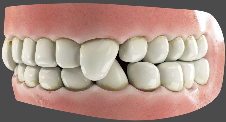牙齿和牙龈和舌头 royalty-free 3d model - Preview no. 3