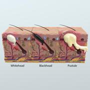 Anatomía realista del acné de la piel en 3D modelo 3d