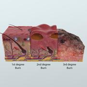 Anatomía realista de quemaduras de piel en 3D modelo 3d