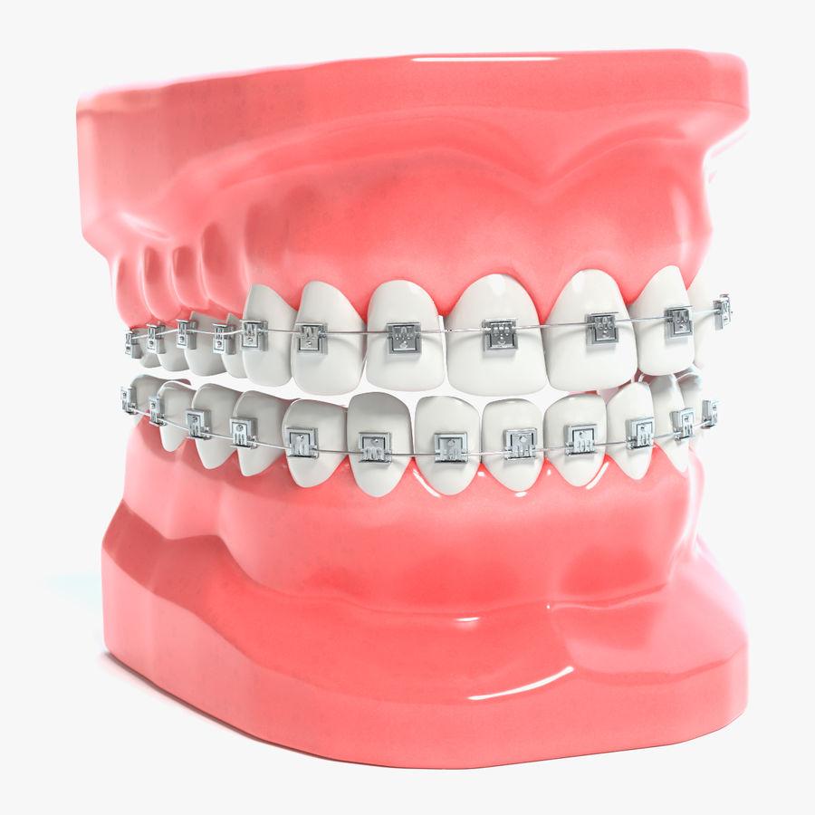 Image result for dental model with braces