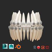 Model wydruku 3D zębów 3d model