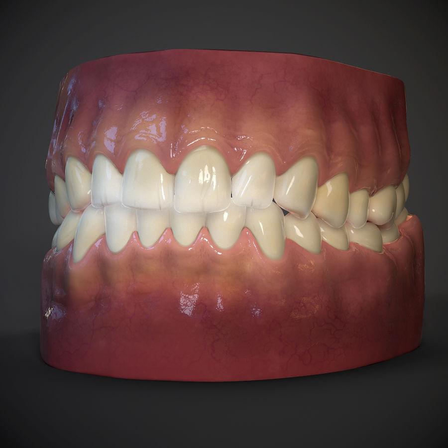牙齿和牙龈 royalty-free 3d model - Preview no. 8