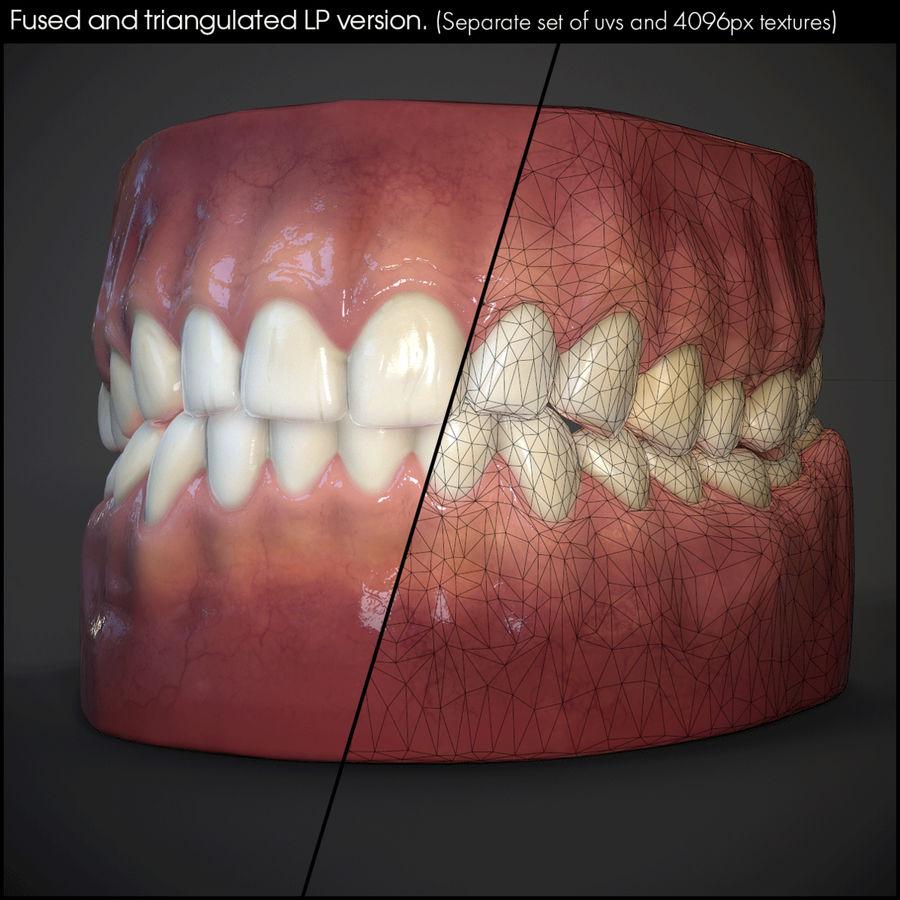 牙齿和牙龈 royalty-free 3d model - Preview no. 26
