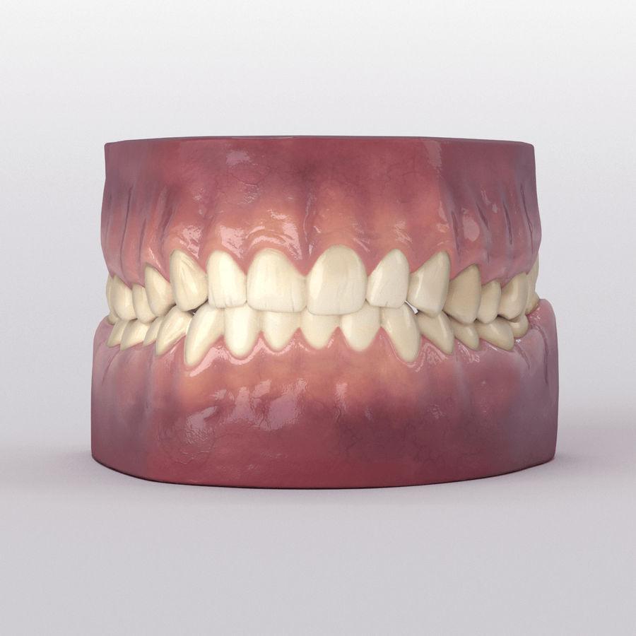 牙齿和牙龈 royalty-free 3d model - Preview no. 28