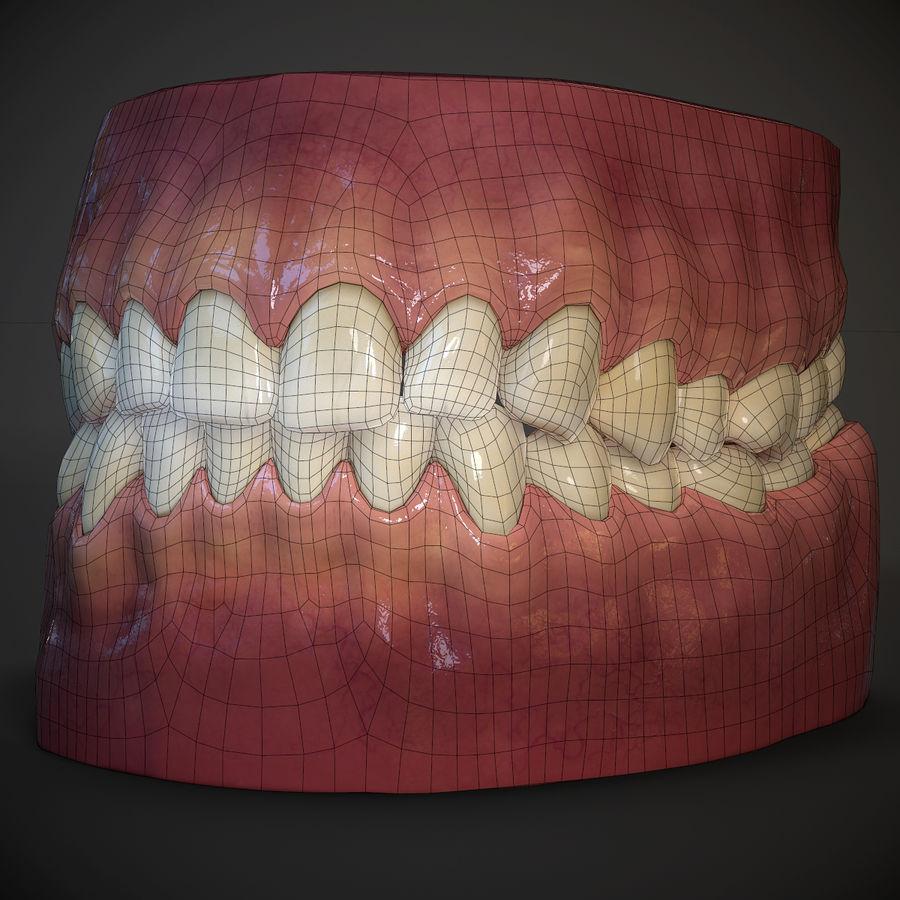 牙齿和牙龈 royalty-free 3d model - Preview no. 11