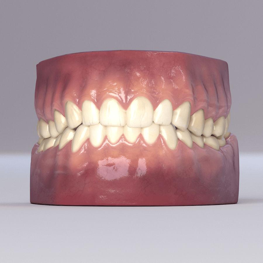 牙齿和牙龈 royalty-free 3d model - Preview no. 35