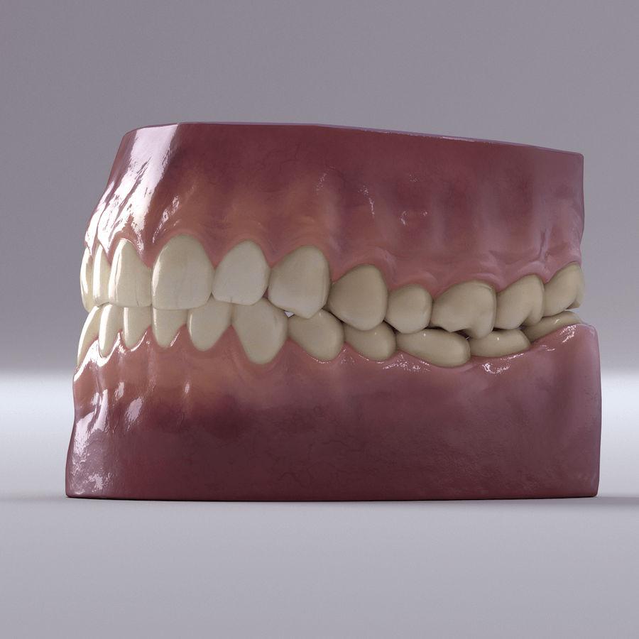 牙齿和牙龈 royalty-free 3d model - Preview no. 33