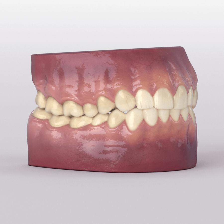 牙齿和牙龈 royalty-free 3d model - Preview no. 29