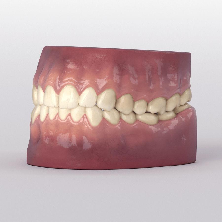 牙齿和牙龈 royalty-free 3d model - Preview no. 27