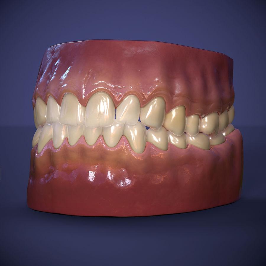 牙齿和牙龈 royalty-free 3d model - Preview no. 13
