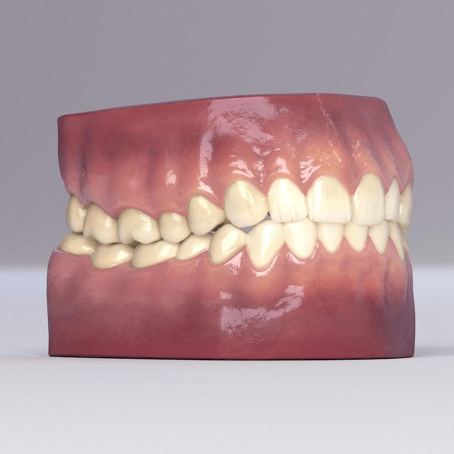 牙齿和牙龈 royalty-free 3d model - Preview no. 38