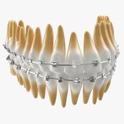 Tanden met bretels Model 3D 3d model