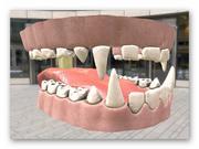 zęby 3d model