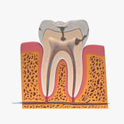 Tooth Decay 3d model