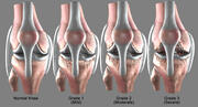 Osteoarthritis Knee joint Conditions (Normal, Mild, Moderate, Severe) 3d model