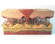 皮肤癌细胞 3d model