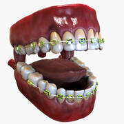 Human Mouth with Dental Braces 3d model